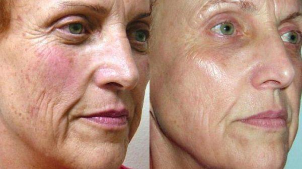 Омоложение лица после 60 лет