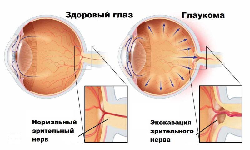 Глаукома – давление и слепота