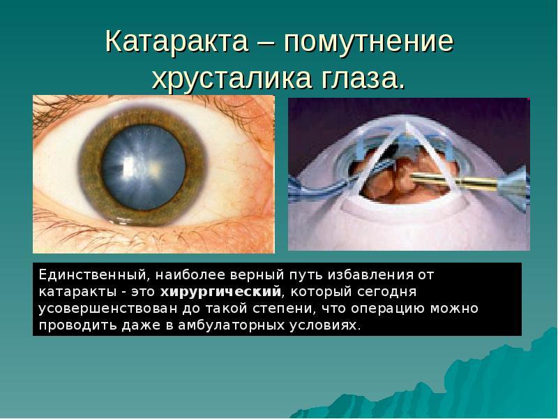 Катаракта – помутнение зрения